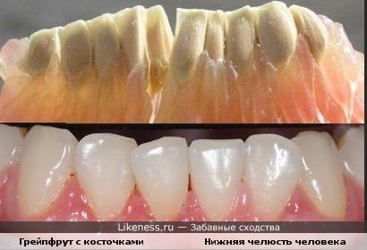 Вот это зубы!!!