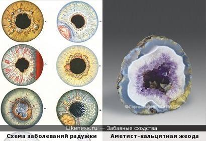 Жеода в разрезе и схематическое изображение заболеваний радужной оболочки (автор в курсе о замечательном сходстве с глазом козы)