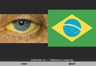 Флаг Бразилии похож на воспалённый глаз.