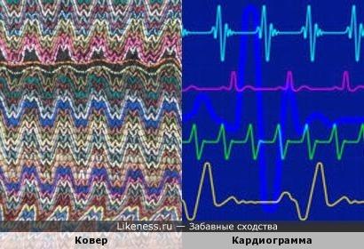 Ковер и кардиограмма