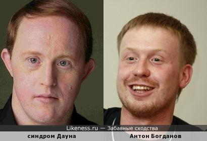 Антон Богданов из Реальных пацанов похож на дауна