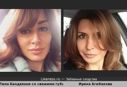Тина Канделаки со свежими губами похожа на Ирину Агибалову