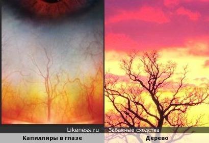 Макросъёмка капилляров в глазах напоминает изображение дерева