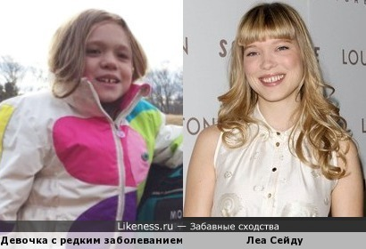 Девочка из новостей похожа на Леа Сейду