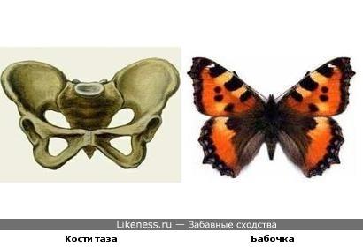 Кости таза напоминают бабочку.