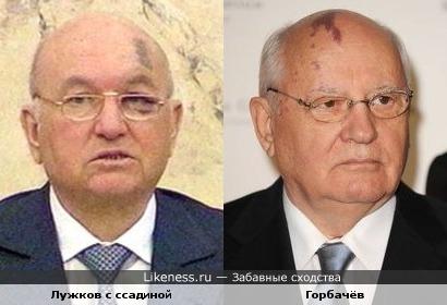 Лужков с ссадиной VS Горбачёв