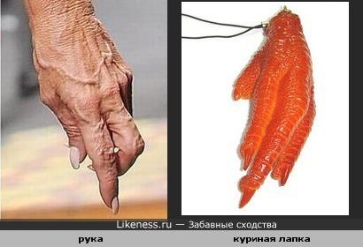 Рука похожа на куриную лапку