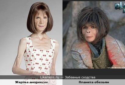 """Жертва анорексии похожа на героиню """"Планеты обезьян"""""""
