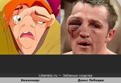 Денис Лебедев (здоровья ему) временно похож на Квазимодо