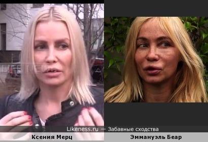 Добровольные жертвы пластики Ксения Мерц и Эммануэль Беар