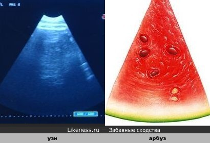 Ломтик арбуза похож на экран аппарата ультразвукового исследования