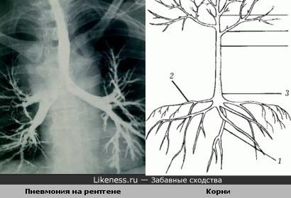 пневмония на рентгентовском снимке напоминает корни