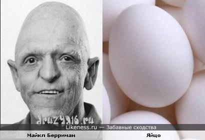 Майкл Берриман похож на яйцо