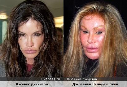 Дженис Дикинсон стала похожа на Джоселин Вильденштейн