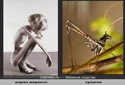 Жертва анорексии напоминает кузнечика