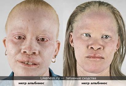 негр альбинос похож на другого негр альбиноса