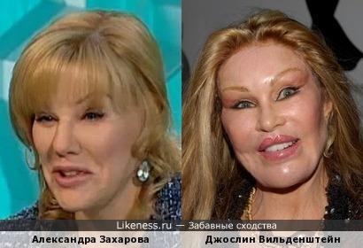Александра Захарова похожа на Джослин Вильденштейн пластическая