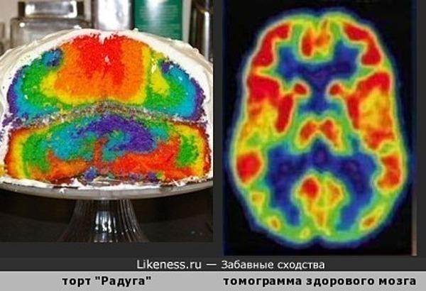 Психоделический тортик напомнил позитронно-эмиссионную томограмму головного мозга
